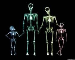 Виды рентгеновских аппаратов