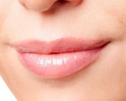 Что такое контурная пластика губ