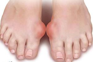 Основные симптомы и лечение подагры