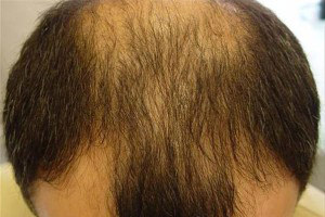 Алопеция бороды у мужчин